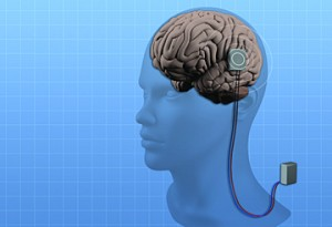 Sridevi Sarma's research focuses on a system with three components: electrodes implanted in the brain, which are connected by wires to a neurostimulator or battery pack, and a sensing device, also located in the brain implant, which detects when a seizure is starting and activates the current to stop it.
